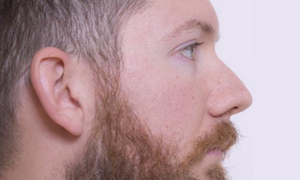メンズ髭脱毛おすすめクリニック・サロンランキング【2019年最新】ヒゲ脱毛で悩んでる人必見